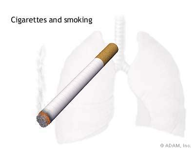 Essay smoking cause and effect